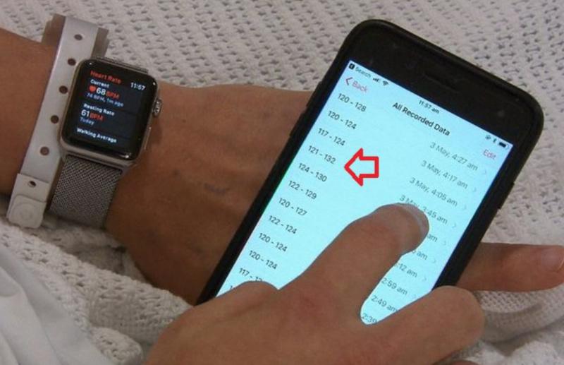 Apple Watch Selamatkan Orang Lagi dari Serangan Jantung