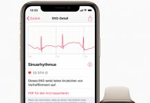 Daftar 23 Negara yang Bisa Pakai Fitur ECG di Apple Watch